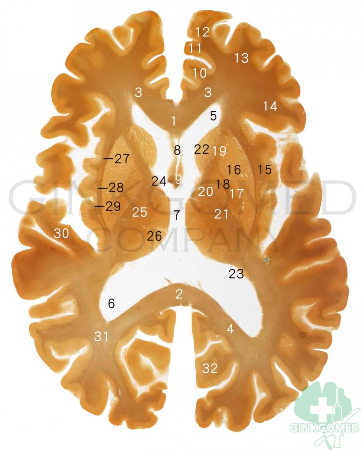 GM-BSD002 Acrylic Duplicates of Horizontal Brain Slices - Head, Neck ...