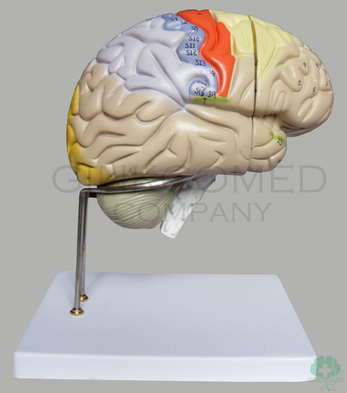 GM-080013 Enlarged Brain - Head, Neck, Nervous System and Sense ...